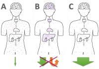Die verschiedenen Formen der Quecksilber (Amalgam) und Schwermetall-Ausleitung: A) Gar nichts machen, B) Staub aufwirbeln und schön in Gehirn + Organe verteilen, C) effektiv binden & ausleiten