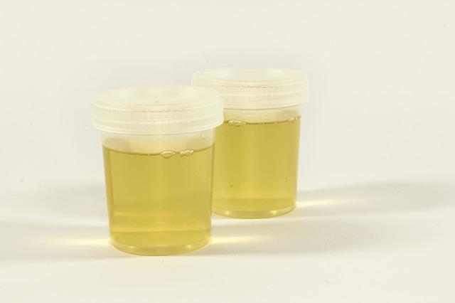 DMPS Mobilisationstests mit Messung im Urin - Eine gute Idee?